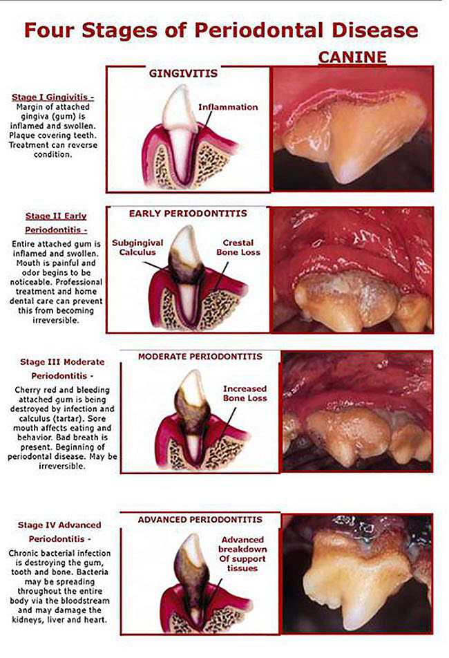 The four grade of periodontal disease