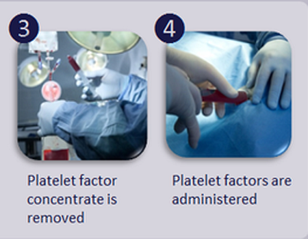 Platelet therapy is definitely an option for dogs suffering from osteoarthritis, or a tendon or ligament injury